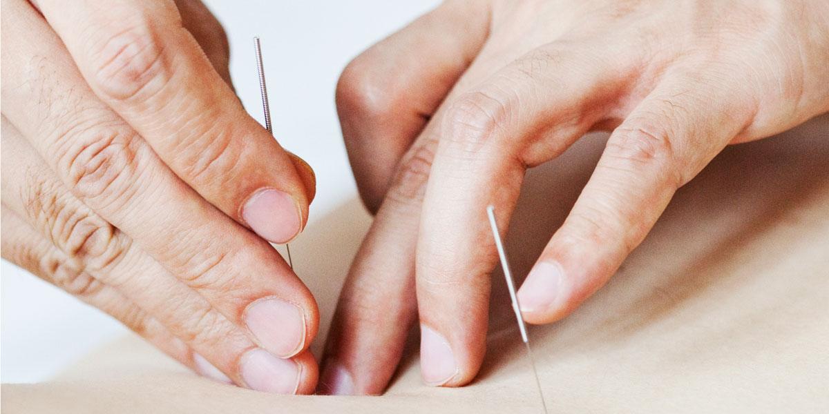inserting acupuncture needles